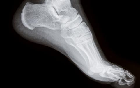 &lt;h3&gt;Most Common Sports Injuries: Plantar Fascitis&lt;/h3&gt;
