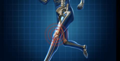 Most Common Sports Injuries: Quad Strain