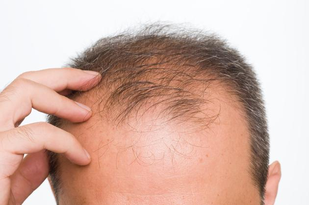 Man with Male Pattern Baldness: horseshoe pattern hair