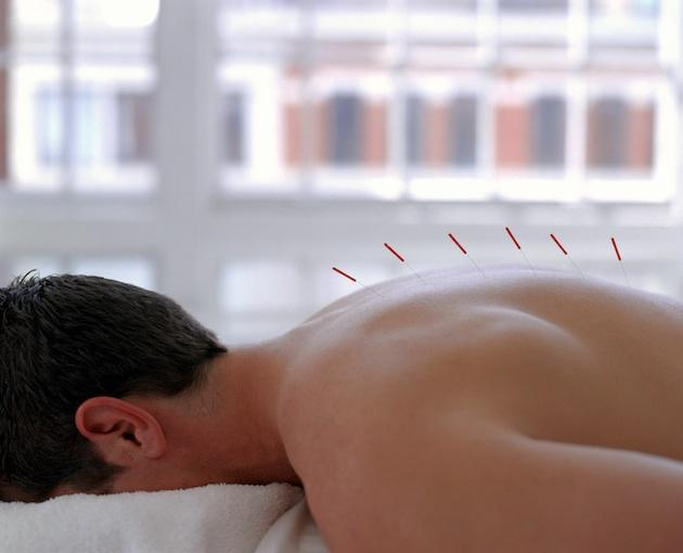 man receiving treatment with acupuncture