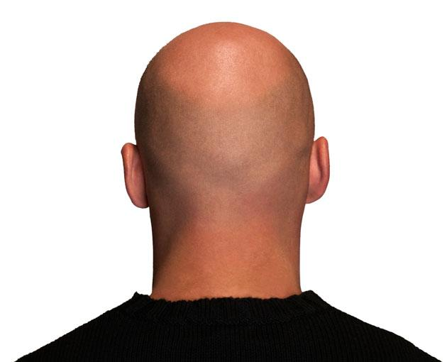 Clue to Male Baldness Discovered