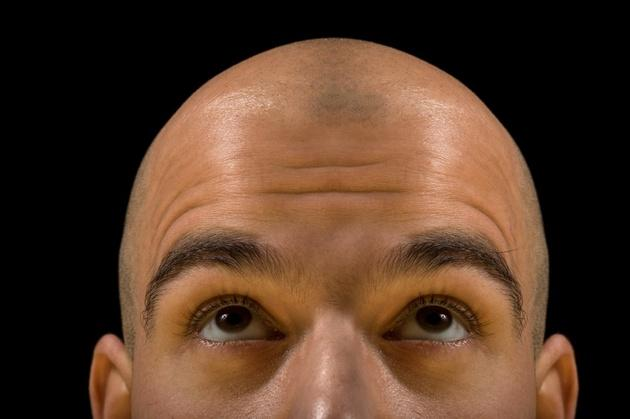 Man looks up at bald head