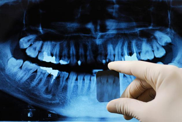 Dental X-Rays Linked to Brain Tumors