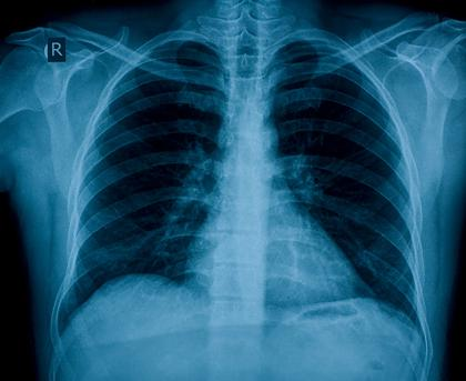 The Lowdown on X-Rays